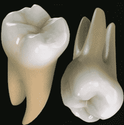 gigi geraham molar